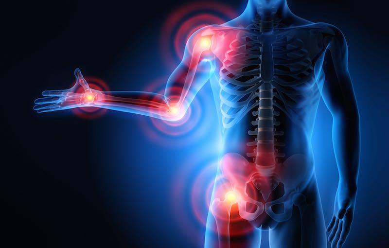 hogyan lehet enyhíteni a fájdalmat az ízületi gyulladásoktól)